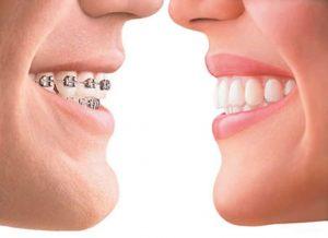 Ortodoncia 1