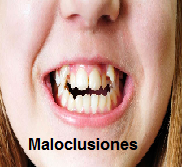 Maloclusiones Clases I, II y III
